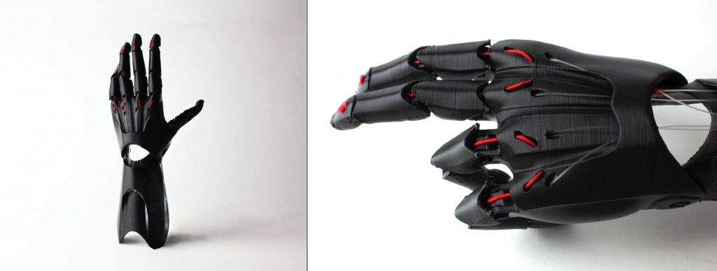 3D printed prosthetic arm and hand