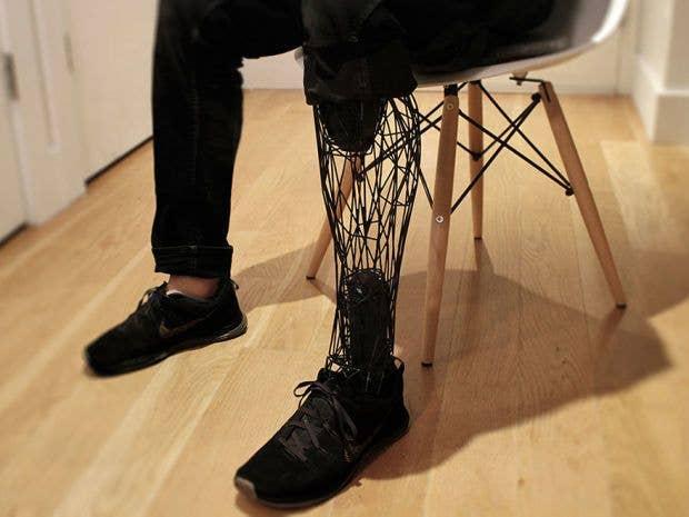 3D printed prosthetic leg